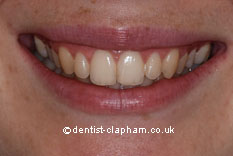 Amalgam Removals After