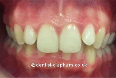Amalgam Removals Before