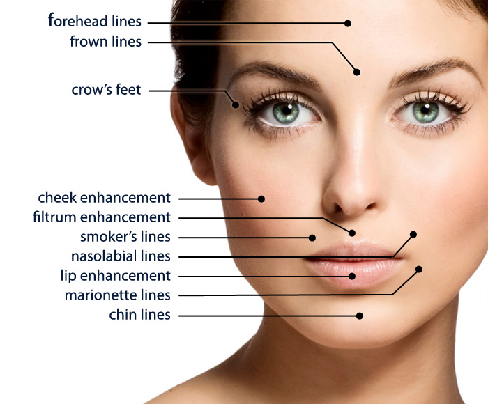 dermal fillers improve